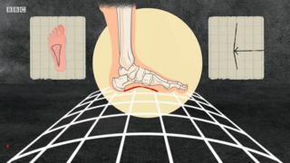 Imagem de um pé