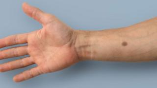 Skin implant to detect cancer