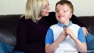 وقتی من بمیرم بر سر فرزند معلولم چه میآید؟