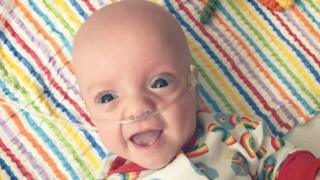 The photo of Arlo Watson used in the Birmingham Children's Hospital campaign