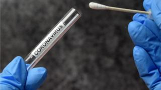 positive people Coronavirus swab test