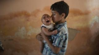 Brazil Zika outbreak: More babies born with birth defects