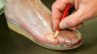 Foot being fitted for orthotic