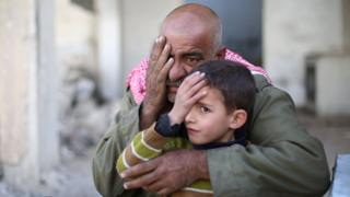 Syrians pose covering one eye with their hands in the rebel-held town of Douma in Syria's besieged eastern Ghouta region, on December 18, 2017, as part of a campaign in solidarity with a baby boy, Karim Abdallah, who lost an eye, as well as his mother, in government shelling on the nearby town of Hammouria