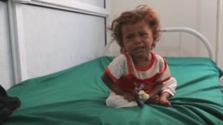 내전과 기아로 고통받는 예멘의 어린이