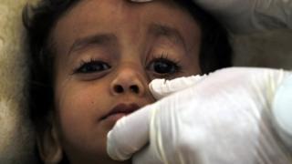 Criança atendida no hospital
