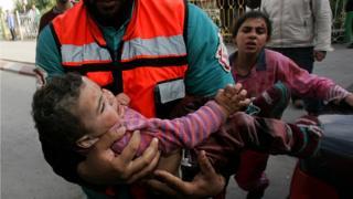 طفل مصاب في غزة