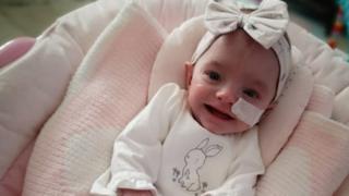770 gram olarak doğan Ivy Worsley şimdi 9 aylık sağlıklı bir bebek