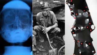 X-ray, miner, sculpture
