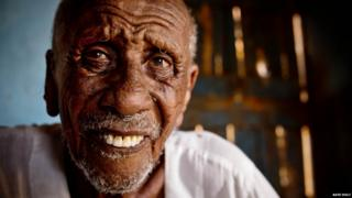 An elderly man, who is found to be suffering from trachoma, poses for a photograph