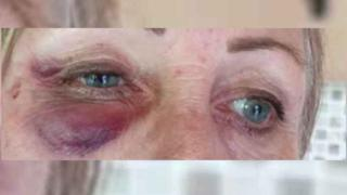 Bruised eyes of ambulance paramedic