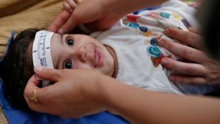 Mikrosefali muayenesi için kafa büyüklüğü ölçülen bir bebek
