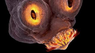 Ampliação da cabeça de um verme da espécie Taenia Solium (tênia)
