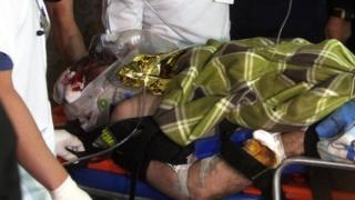 Rafael Henzel chega ao hospital