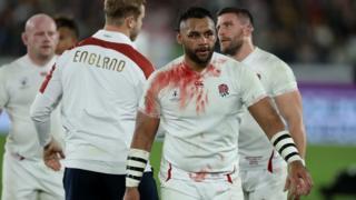 A bloodied Billy Vunipola