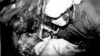 หลุยส์ วอชคันสกี เป็นคนแรกที่ได้รับการผ่าตัดปลูกถ่ายหัวใจ