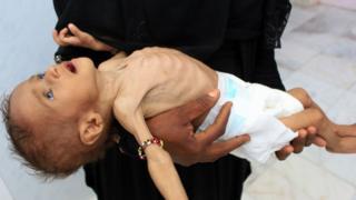 Yemen'de yetersiz beslenmiş bir çocuk