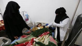 Uma criança internada com sarampo no Iêmen aparece em maca, observada por duas mulheres