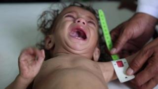 ယီမင်မှာ ကလေး ၅ သန်းကျော် ငတ်မွတ်ဖွယ်ရှိ
