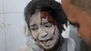 A Syrian girl receives treatment in the rebel-held enclave of Eastern Ghouta on March 7, 2018.