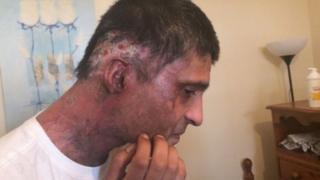 Jameel Muhktar's injuries to his face