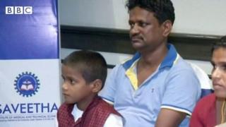 Le petit garçon de 7 ans a souffert pendant plus de quatre ans de sa mâchoire enflée.