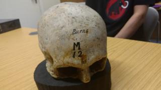 The cast of Robert Burns skull