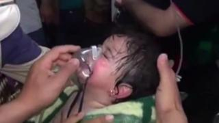 A Syrian infant girl is treated after an alleged chemical weapons attack