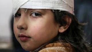 Children hurt in siege of Eastern Ghouta