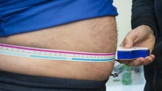 Measuring obesity