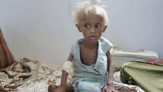 صدمت حالة الطفل اليمني سليم العالم قبل سنة لما بدا عليه من هزال بسبب الجوع الذي يهدد نصف أطفال اليمن. فأين هو سليم الآن؟ وماهي الجهود القائمة لإنقاذ أطفال اليمن؟