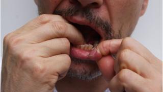 Чистка зубов с помощью нити
