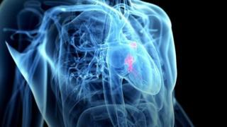 حبة غير مكلفة قد تنقذ الكثيرين من الأزمات القلبية