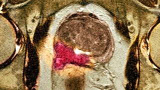 Prostatta kanser hücresi