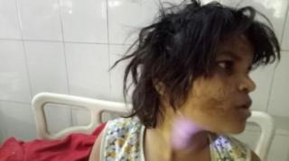 ตำรวจเผยเด็กหญิงอยู่ในสภาพขาดอาหาร มีรอยบาดแผลตามร่างกาย พูดไม่ได้ และใช้ทั้งมือและเท้าเวลาเดิน