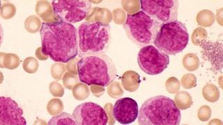 Chronic myeloid leukaemia is a rare blood cancer.