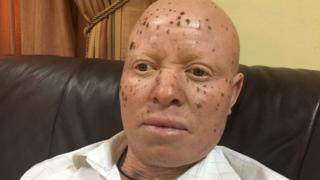 A man with albinism