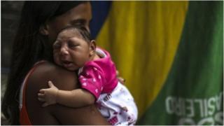 Mtoto mwenye maradhi ya Zika