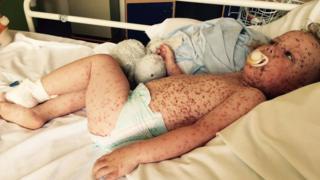 Jasper Allen, from St Neots, who had severe chickenpox