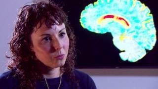 ศาสตราจารย์ซาราห์ ทาบริซี แห่งสถาบันประสาทวิทยาของยูซีแอล ผู้นำทีมวิจัย