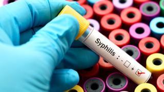 test tube syphilis