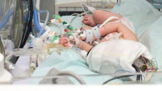 Baby in intensive neonatal care