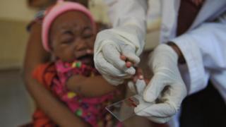 Un chercheur fait un prélèvement de sang sur un enfant atteint de paludisme (illustration)