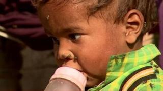 เด็กกำลังดูนมจากขวดนม