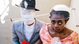 Una fotografía de TSoku Maela muestra a un hombre vendado y una mujer con ojo blanco.
