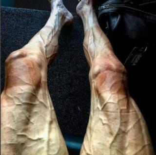 Pawel Poljanski'nin bacakları