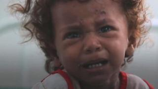 کودکان یمن از سوءتغذیه و بیماری در رنجند.