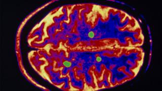 Brain in patient with MS