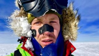 O'Brady wore tape on his face to stave off frostbite
