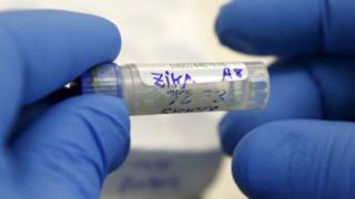 Mẫu máu có virus Zika